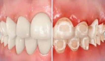 Will Orthodontic Treatment Cause White Marks on my Teeth? Prevention Tips